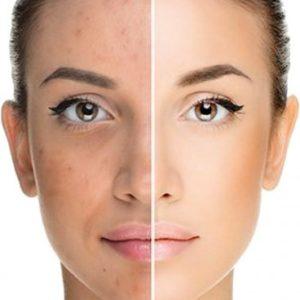Комплексная терапия акне в практике косметолога